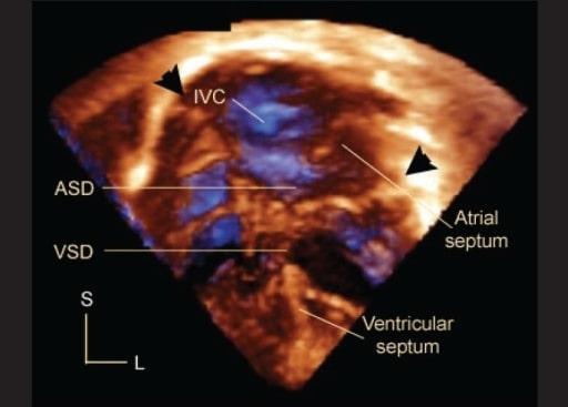 Congenital heart defect echocardiography