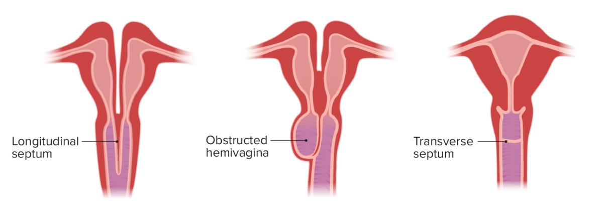 Congenital vaginal anomalies