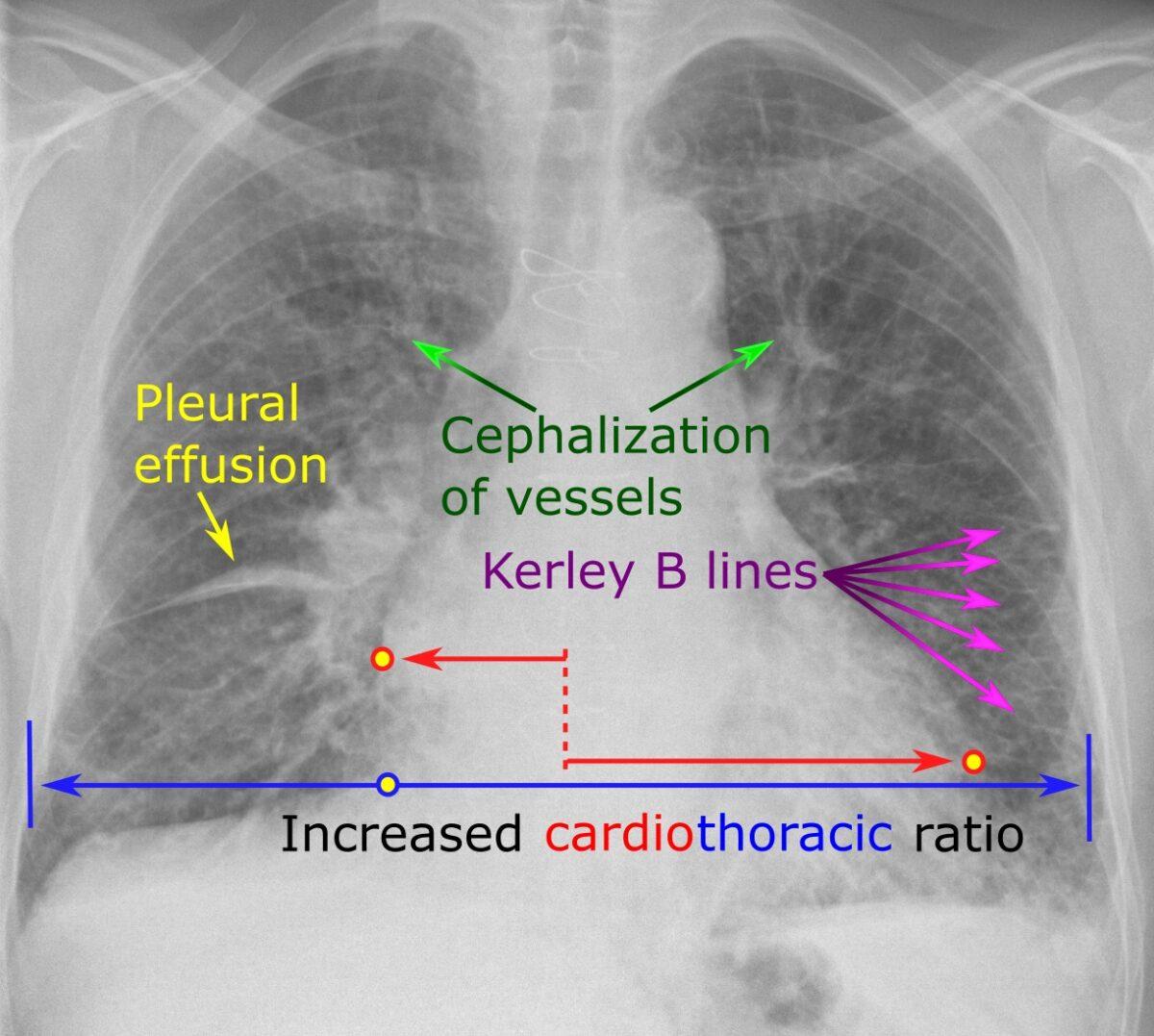 Congestive heart failure radiograph
