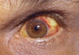 Conjunctival suffusion leptospirosis