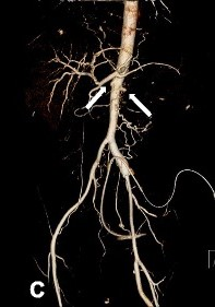 Contrast-enhanced abdominal CT and abdominal aorta CT angiography