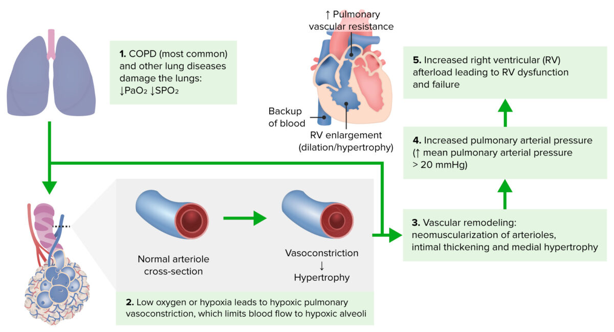 Cor Pulmonale Pathophysiology