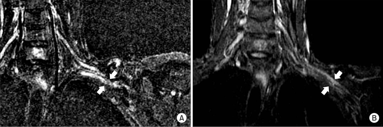 Coronal T2-weighted magnetic resonance images of the left brachial plexus
