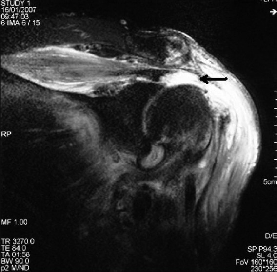 Coronal-oblique T2-weighted magnetic resonance image showing full-thickness rotator cuff tear