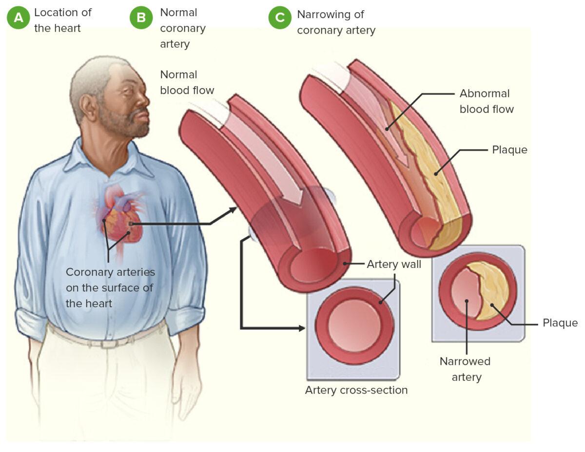 Coronary heart disease pathophysiology