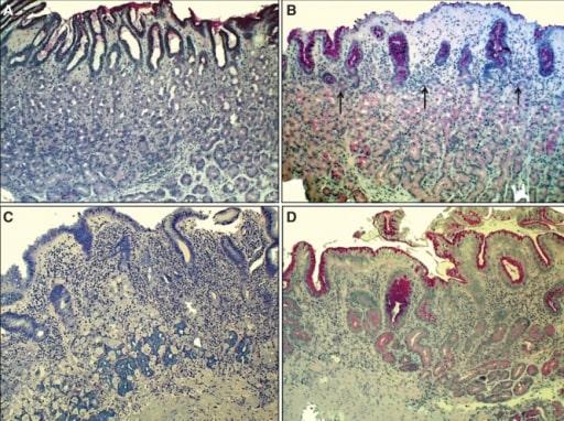 Corpus mucosa