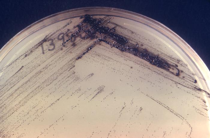 Corynebacterium diphtheriae