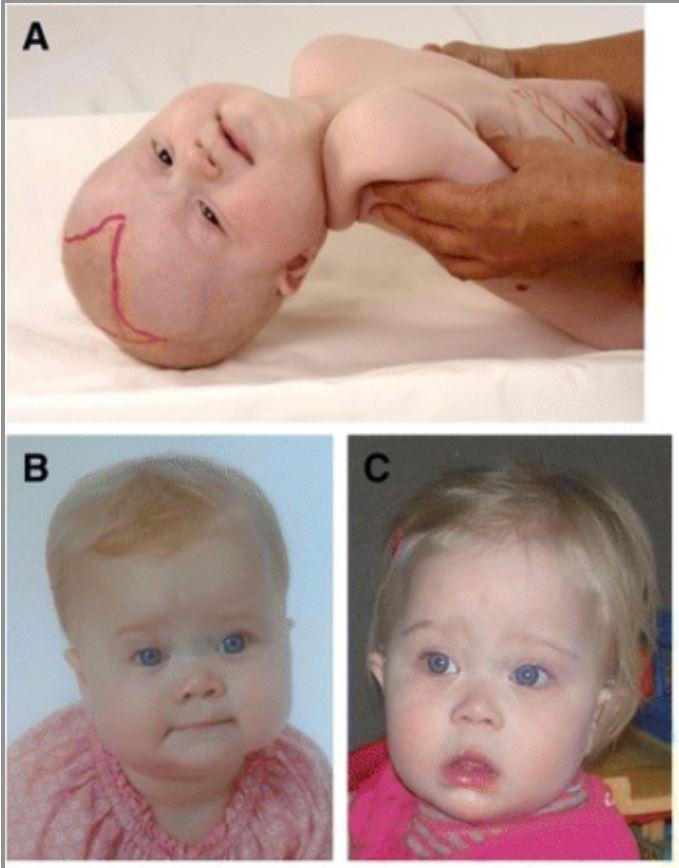 Craniofacial dysmorphic features in patients with Zellweger spectrum disorders (ZSD)