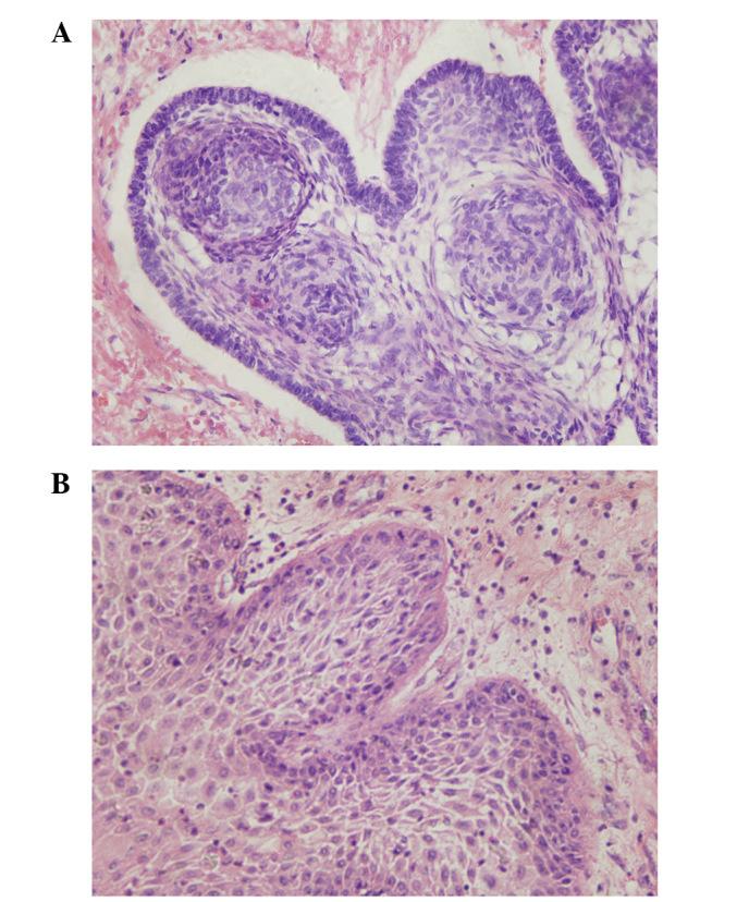 Craniopharyngioma section images captured using light microscopy