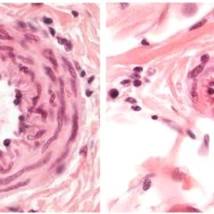 Cross sections of a small artery (left) and an arteriole (right)