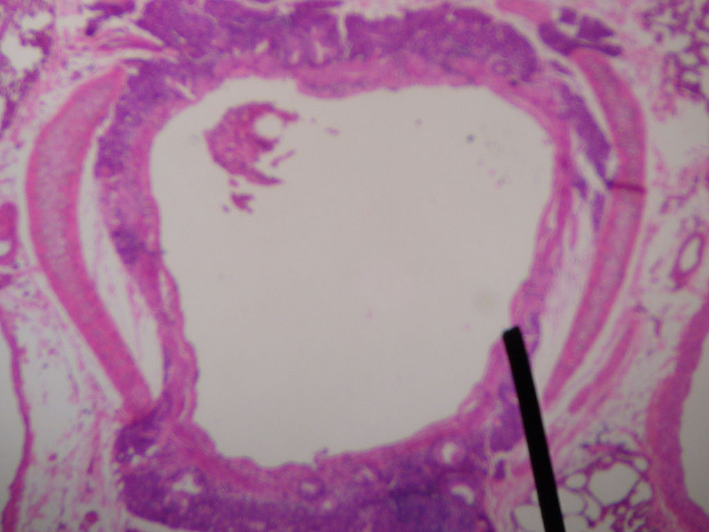 Cross section of secondary bronchus