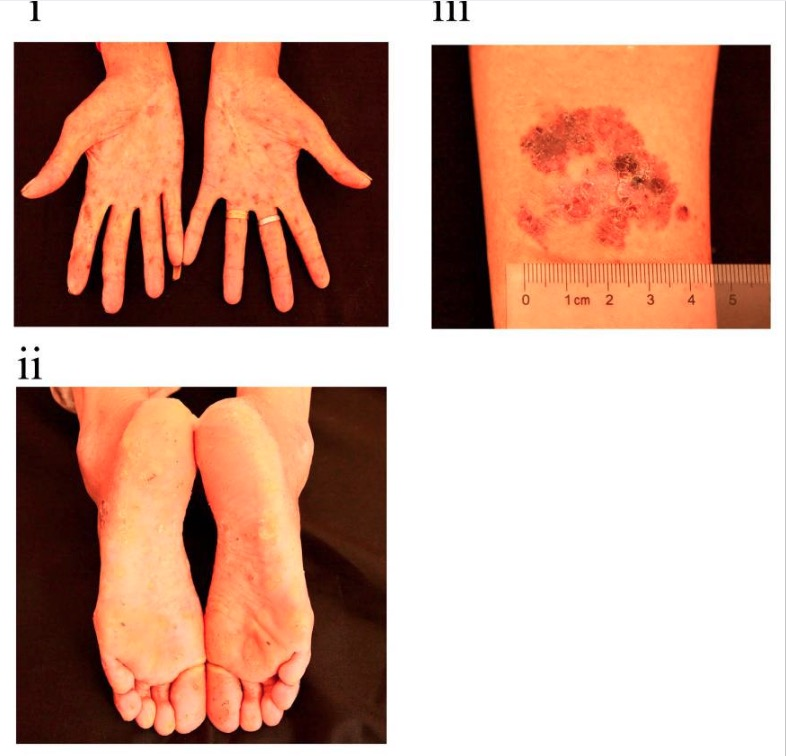 Cutaneous findings in chronic arsenic poisoning
