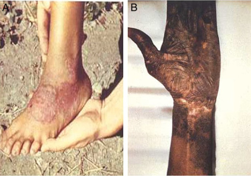 Cutaneous lesions of pinta