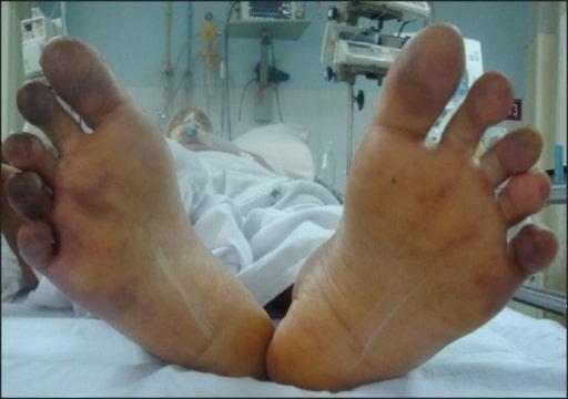 Cyanosis toes