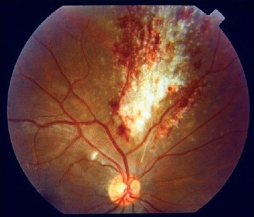Cytomegalovirus retinitis