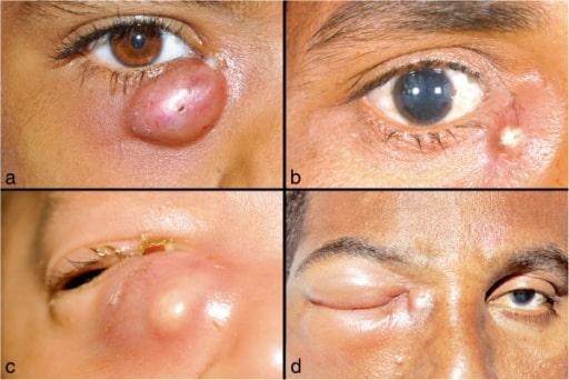 Dacryocystitis clinical presentation