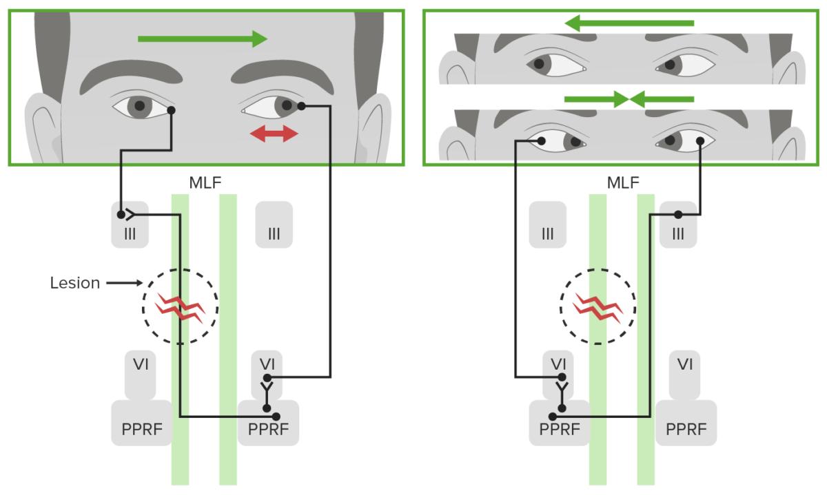 Defect of horizontal gaze in internuclear ophthalmoplegia
