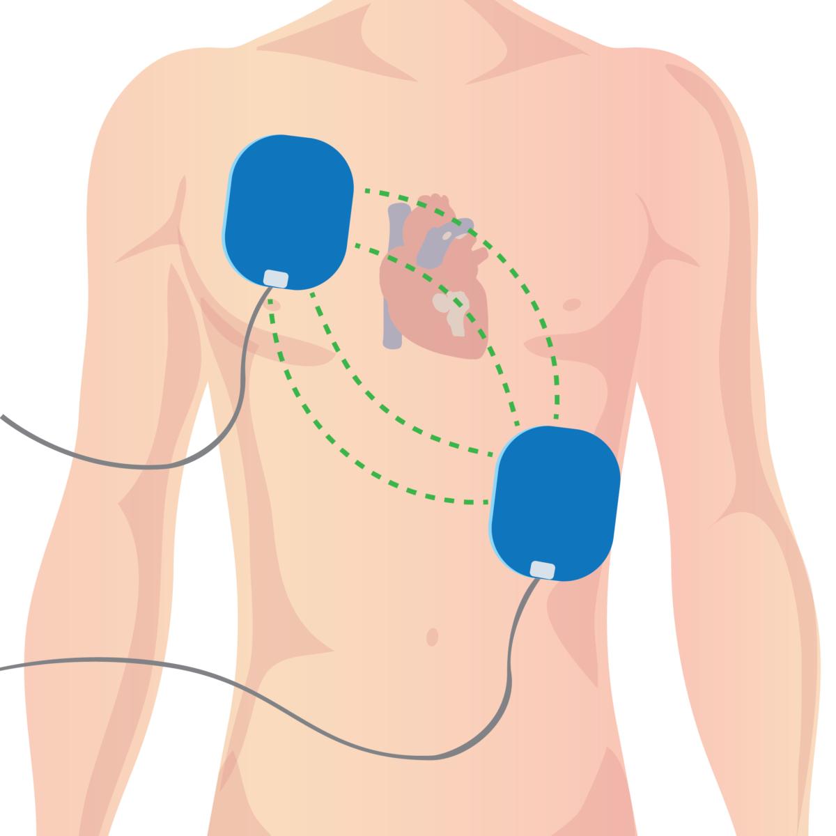Defibrillator pad placement