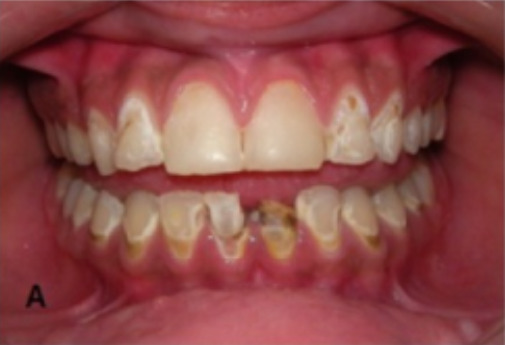 Dental caries in a patient with secondary Sjögren syndrome