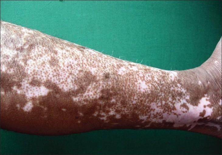 Depigmentation seen in Vitiligo