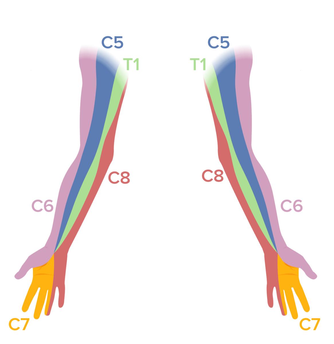 Dermatomal map of the upper limb Neck pain