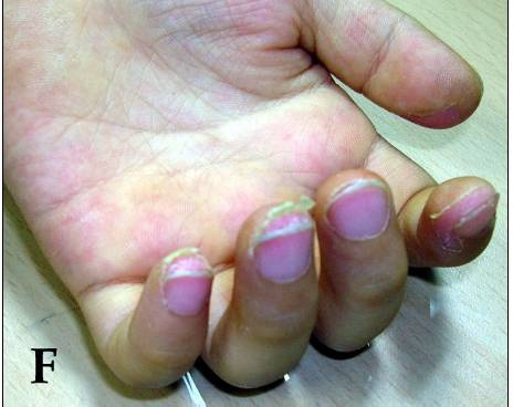 Desquamation of fingers in Kawasaki disease