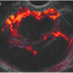 Diagnosis of pelvic inflammatory disease