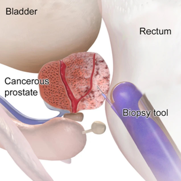 Diagnosis of prostate cancer