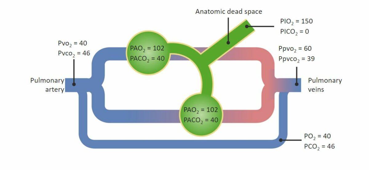 Diagram Hypoxemia Respiratory Gas exchange