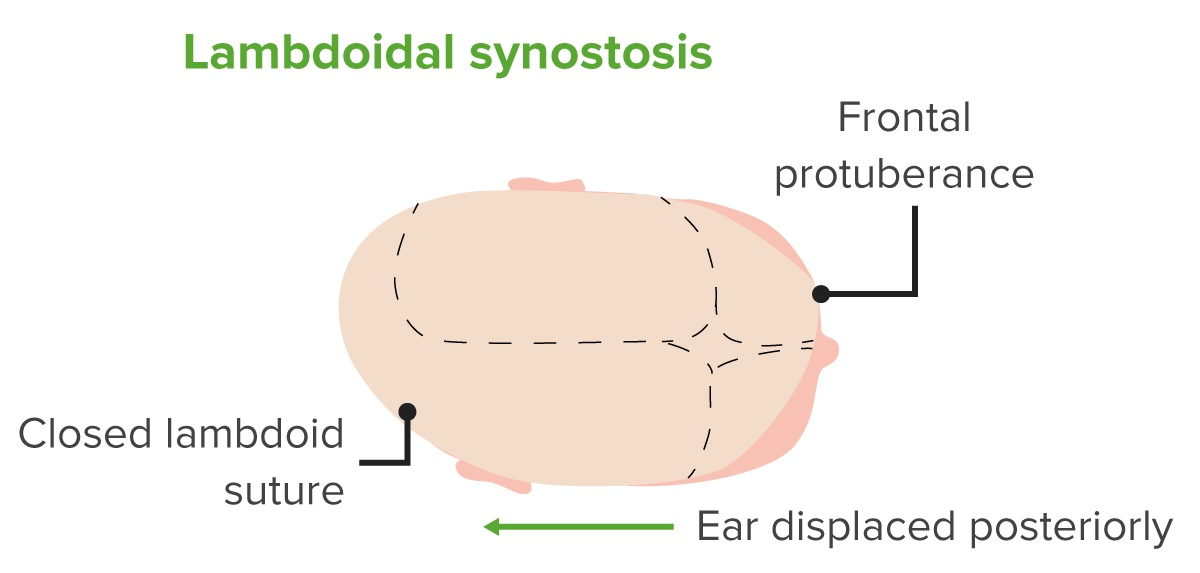 Diagram of a head with lambdoidal craniosynostosis