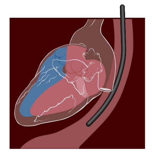Diagram of transesophageal echocardiogram