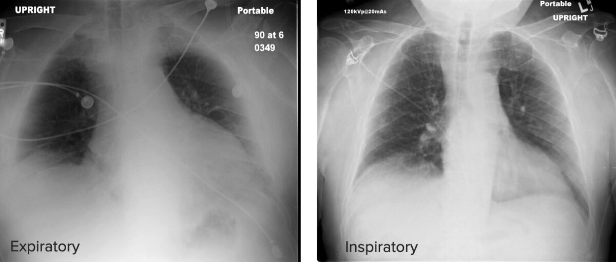 Differences between expiratory and inspiratory chest X-ray