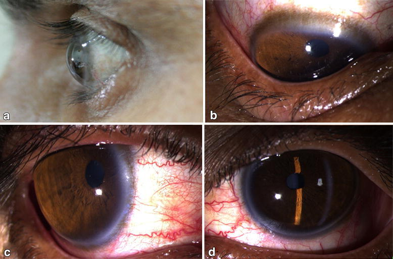 Diffuse corneal thinning with outward protrusion of the globe