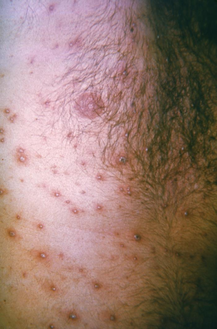 Diffuse vesicles on a red base due to chickenpox