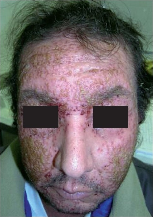 Diffuse vesicular lesions on the face eczema herpeticum