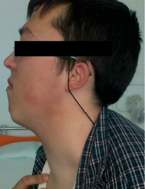 Diffusely enlarged thyroid gland
