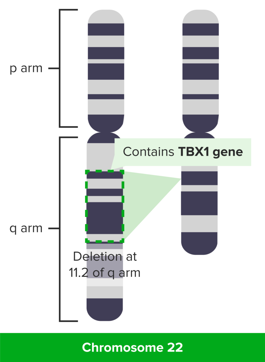 Digeorge syndrome genetics