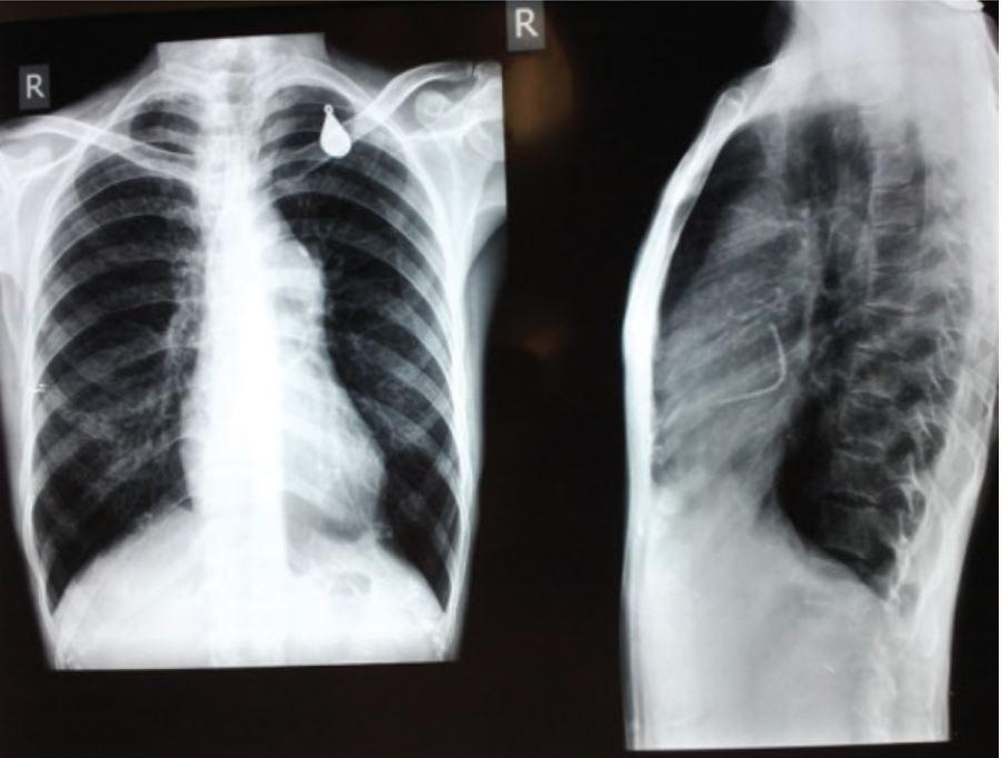 Severe pulmonary valvular stenosis