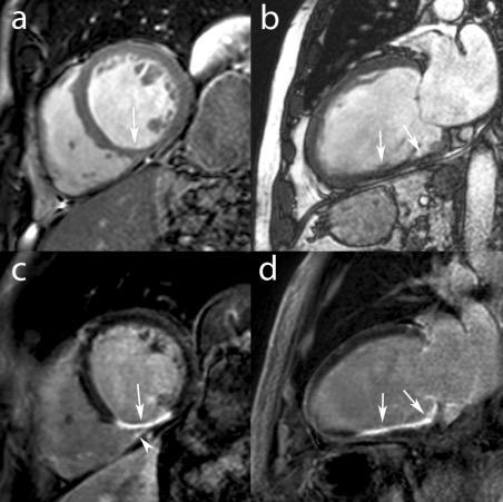 Dilated cardiomyopathy MRI