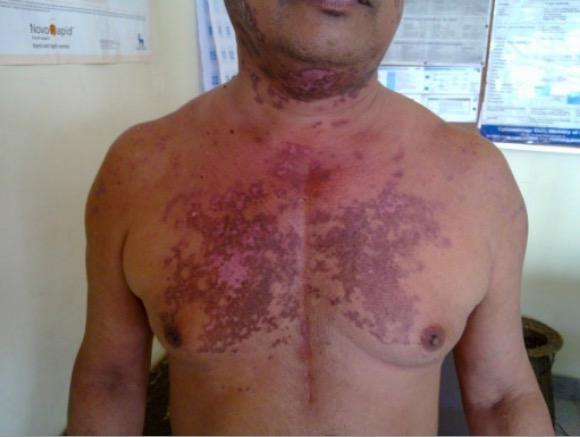 Discoid rash on SLE patient