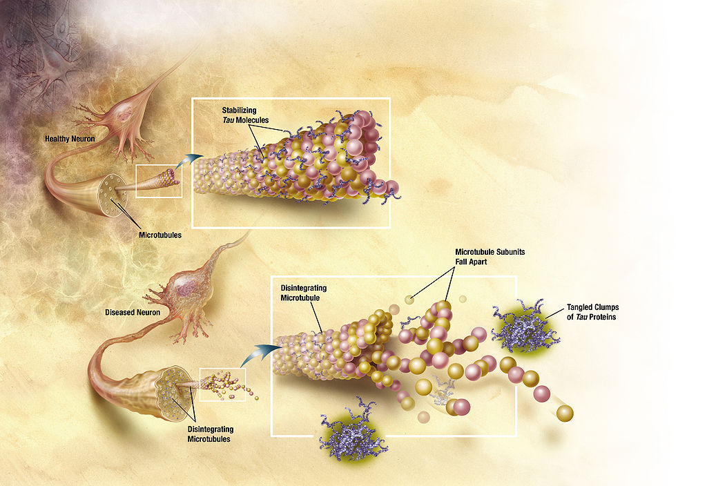 Diagram of how microtubules desintegrate with Alzheimer's disease