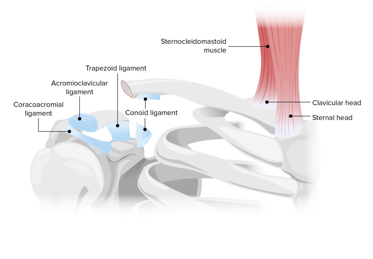 Displacement pattern of typical clavicle fracture