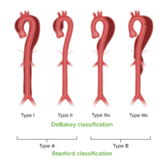Stanford and DeBakey classifications for aortic dissection