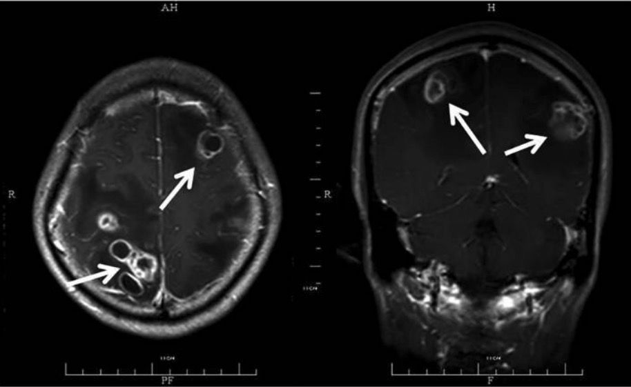 Disseminated central nervous system nocardiosis
