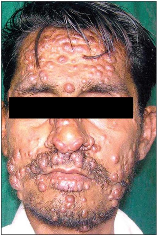 Disseminated cutaneous leishmaniasiseminated cutaneous leishmaniasis