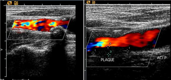 Doppler ultrasound of the carotid arteries (Sonography)