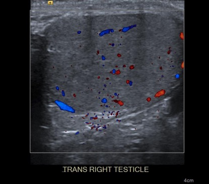 Doppler ultrasound of the right testicle