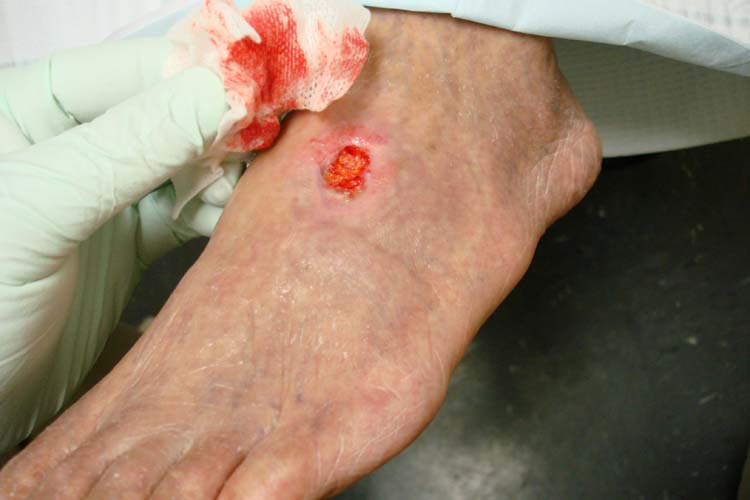 Dorsal foot ulceration
