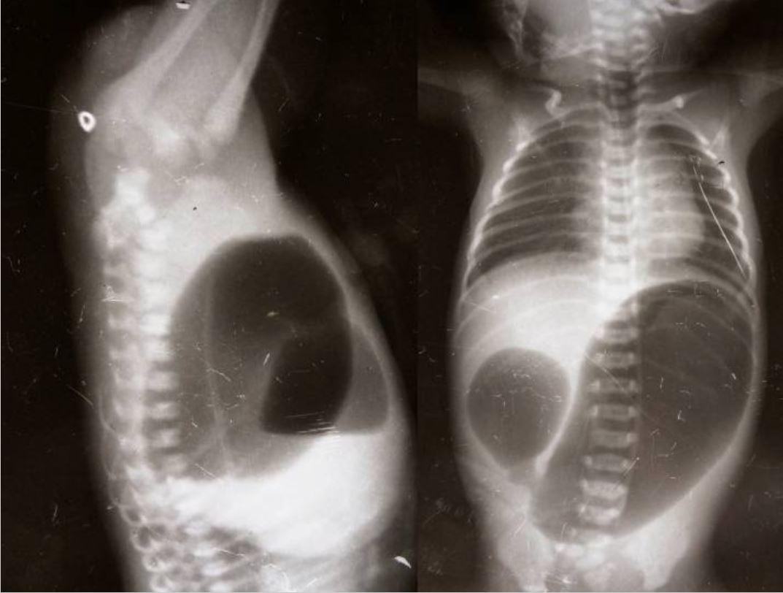 Double bubble sign duodenal atresia