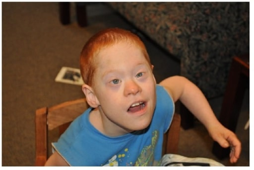 Down syndrome and fragile X syndrome
